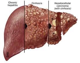 cara mengobati liver